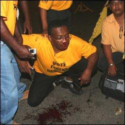 Eugene Hamilton After Violent Attack